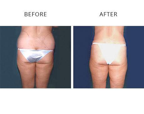 1517495dfc 22 year old woman before and 5 months following removal of 3 pounds of fat  from the lower back and hips.