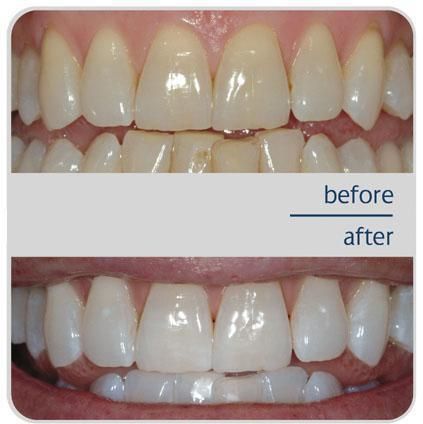 Teeth Whitening In San Francisco Union Square San Francisco Ca