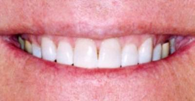 Get A Brilliant White Smile Permanently With Kor Whitening System