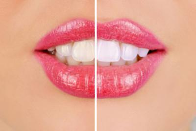 How To Prevent Sensitivity After Teeth Whitening Rebecca Castaneda