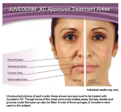 Juvederm - Aurora, CO: Centennial Eye & Cosmetic Associates