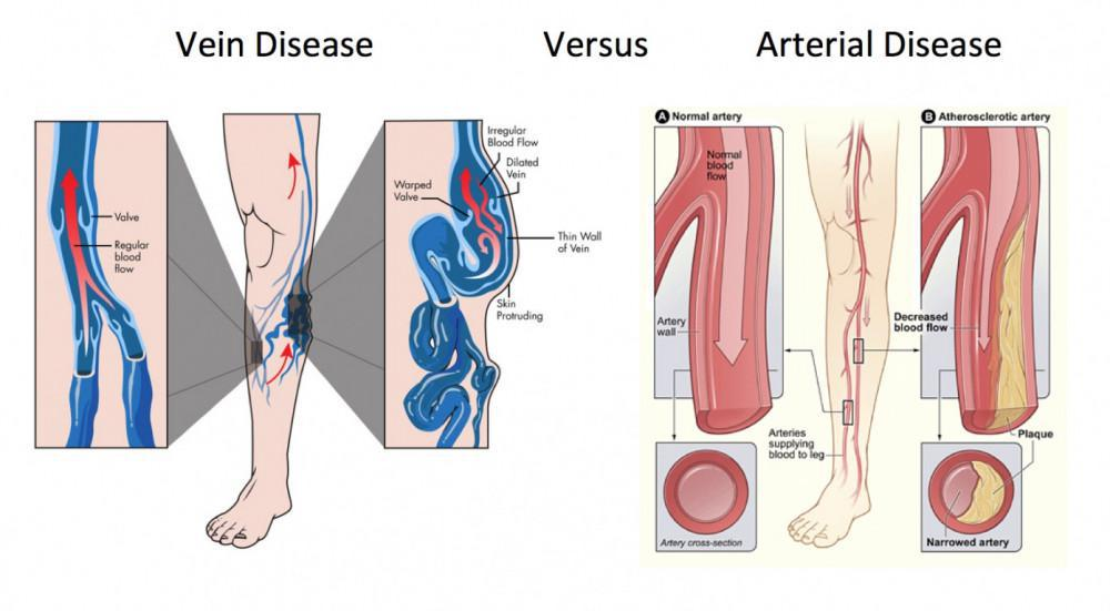 A Vein Care Specialist in Kauai Explains Why Vein Disease Is Worse ...