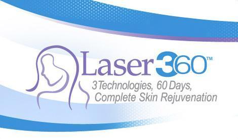 Laser360