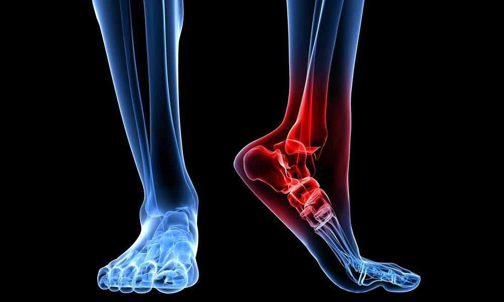 MOST CONDITIONS FOR FOOT & ANKLE PAIN CAN BE TREATED CONSERVATIVELY