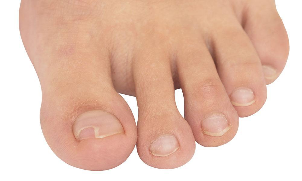 Ingrown Toenails: Home Versus Professional Remedies: Alliance Foot ...