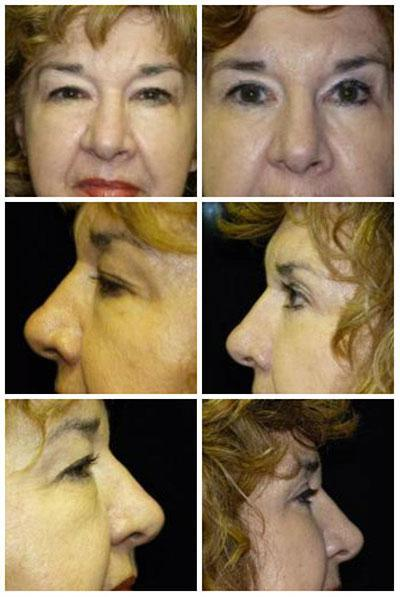 Alabama facial plastic surgeon