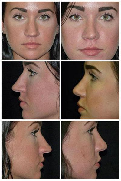 Rhinoplasty/Nose - Dothan, AL: Feagin and Owen Cosmetic