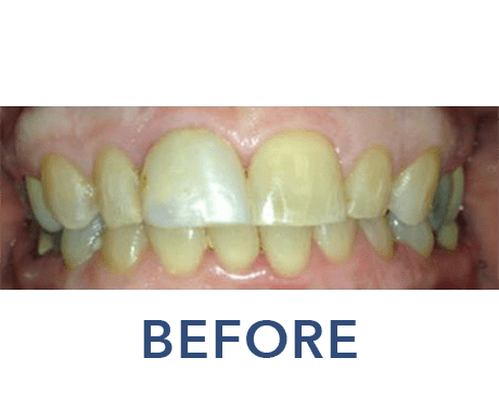 Cosmetic Dentistry Before & After - Upper East Side New York
