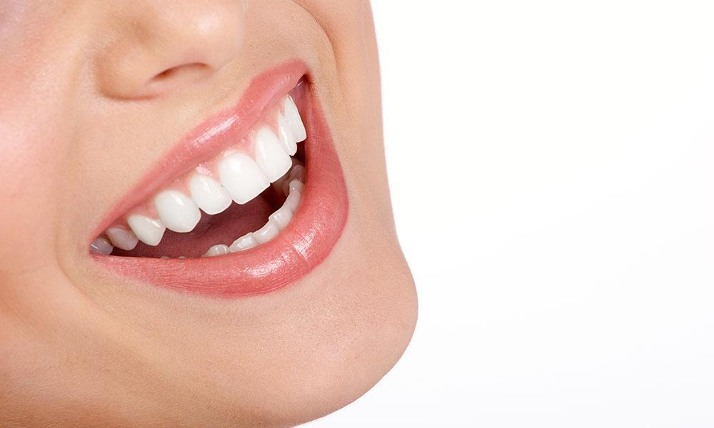 Which is Best for Me: Invisalign or Braces?