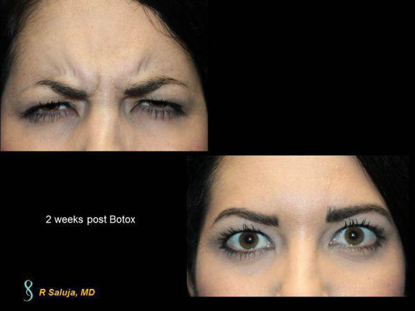 Botox Before & After - Charlotte Huntersville, NC: Saluja Cosmetic