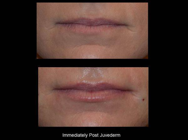Juvederm Lips Before & After - Charlotte Huntersville, NC