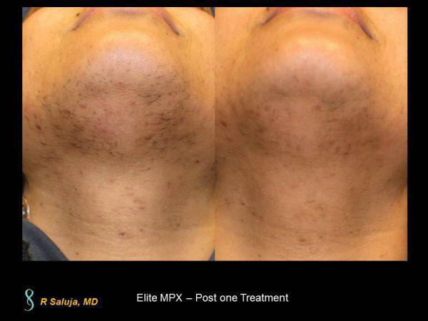 Laser Hair Removal Before After Charlotte Huntersville Nc
