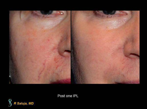 Intense Pulsed Light Ipl Before After Charlotte Huntersville