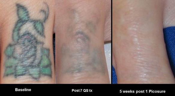 Tattoo Removal Before & After - Charlotte Huntersville, NC: Saluja ...