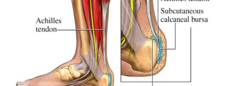 faster recovery from achilles tendon issues florida orthopedic foot