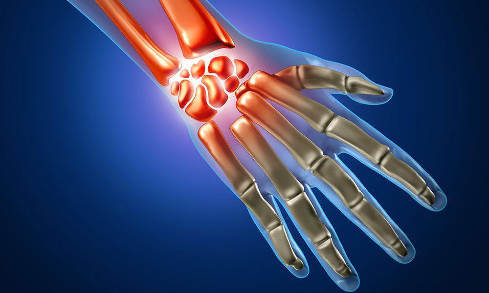 Getting A Hand On Wrist Pain Orthopedic Associates Of Central Texas