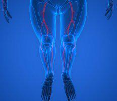 Peripheral Arterial and Vascular Disease