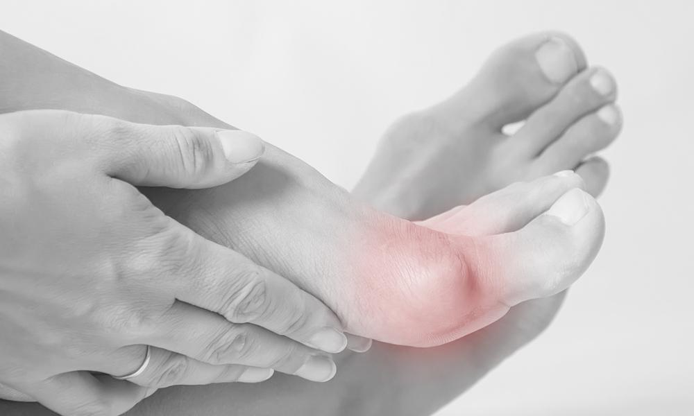 de5ee115a2b How to Know When It's Time for Bunion Surgery: Achilles Foot Care ...