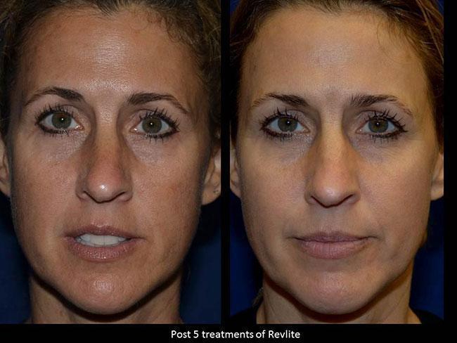 Laser Skin Resurfacing - Charlotte Huntersville, NC: Saluja