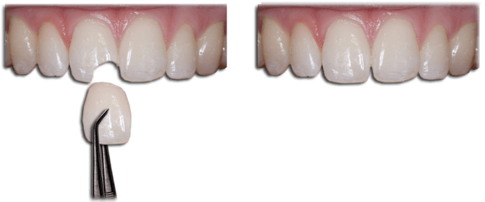 Composite Bonding - Houston, TX: Garden Oaks Dental
