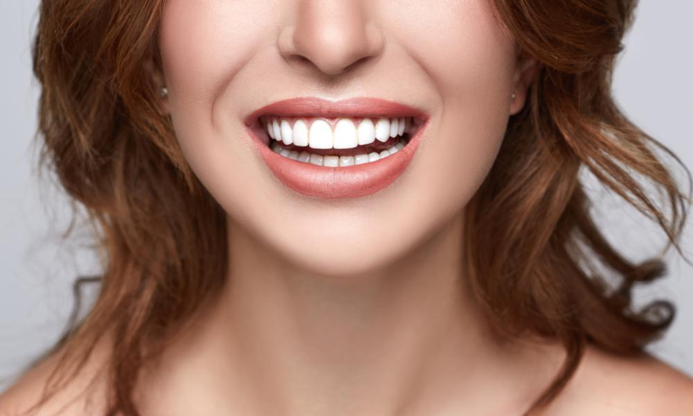5 Ways Veneers Can Improve Your Smile: Modern Age Dentistry: Dentists