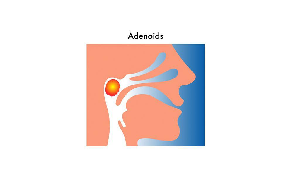 Adenoid Size Assessment Ent Specialists Of Austin Ear Nose