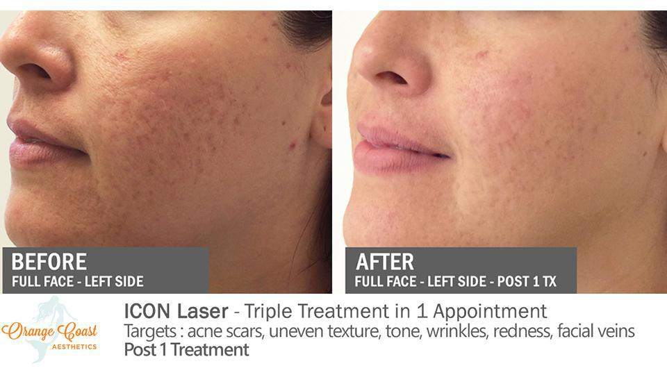 ICON Laser Before and After Photos - Irvine, CA: Orange