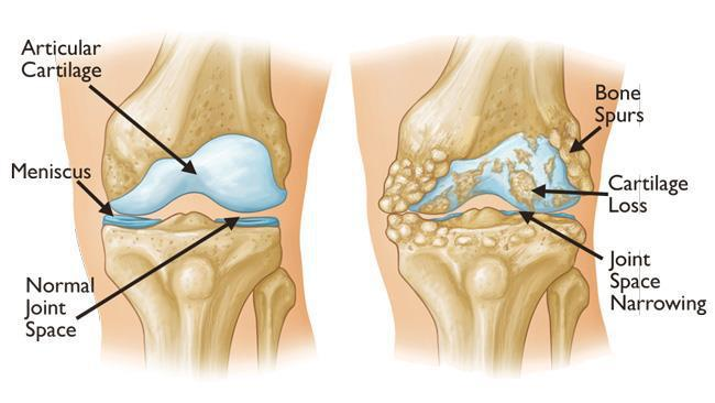 Intra articular injection of mesenchymal stem cells for the intra articular injection of mesenchymal stem cells for the treatment of osteoarthritis of the knee a 2 year follow up study ccuart Gallery