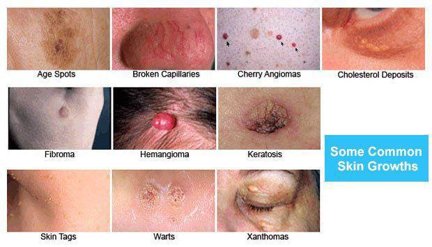 Common Skin Growths A Dermatologist S Perspective Pine Belt Dermatology Skin Cancer Center General Cosmetic Dermatologists