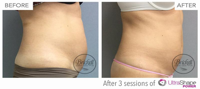 Ultrashape before and after