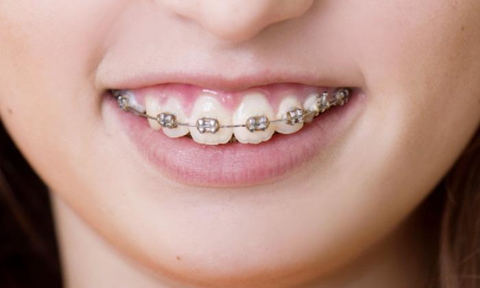 Tips for Caring for Your Braces, Retainers, or Invisalign at