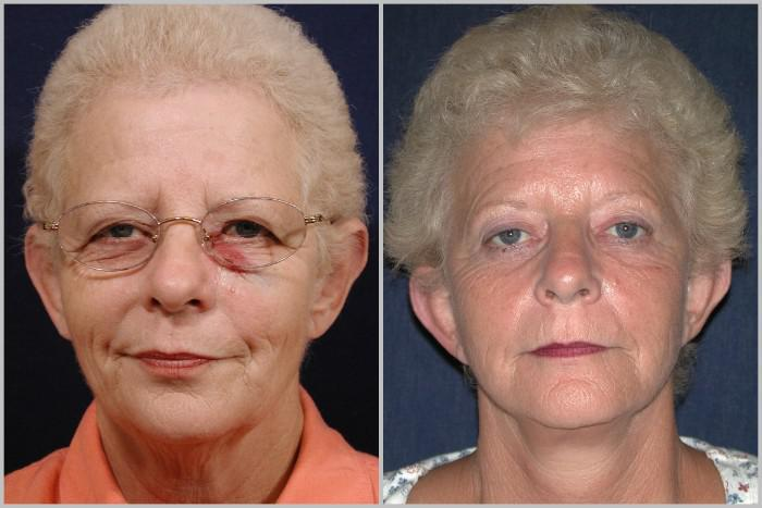 Brow Lift Winchester Va Exclusively Faces Cosmetic Surgery Medispa