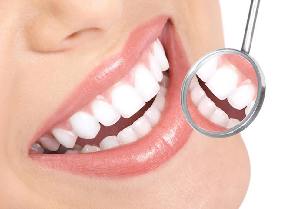 5 Tips for Keeping Your Teeth White