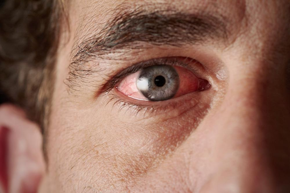 How To Keep Your Eyes Infection Free David R Frazee Od