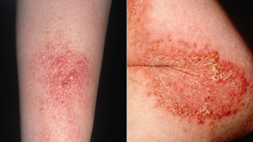 Poison Ivy Treatments In The Hattiesburg Laurel Area Pine Belt Dermatology Skin Cancer Center General Cosmetic Dermatologists,Steaming Green Beans In Pressure Cooker