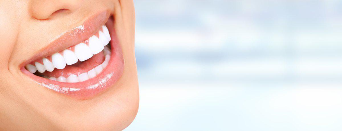 50% Off All Whitening For A Limited Time!
