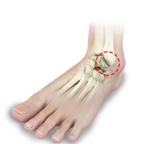 ankle cartilage injury upper west side columbus circle new york ny