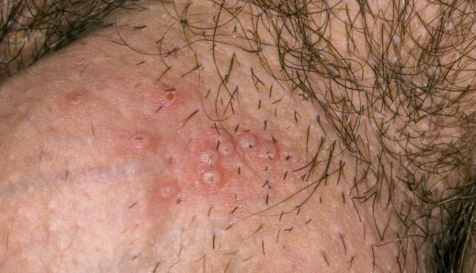 Genital Herpes Treatment In South Mississippi: Pine Belt Dermatology
