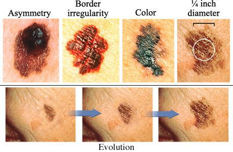 Skin Cancer Fort Lauderdale Fl Z Roc Dermatology