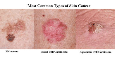 Skin Cancer Screening Fort Lauderdale Fl Z Roc Dermatology