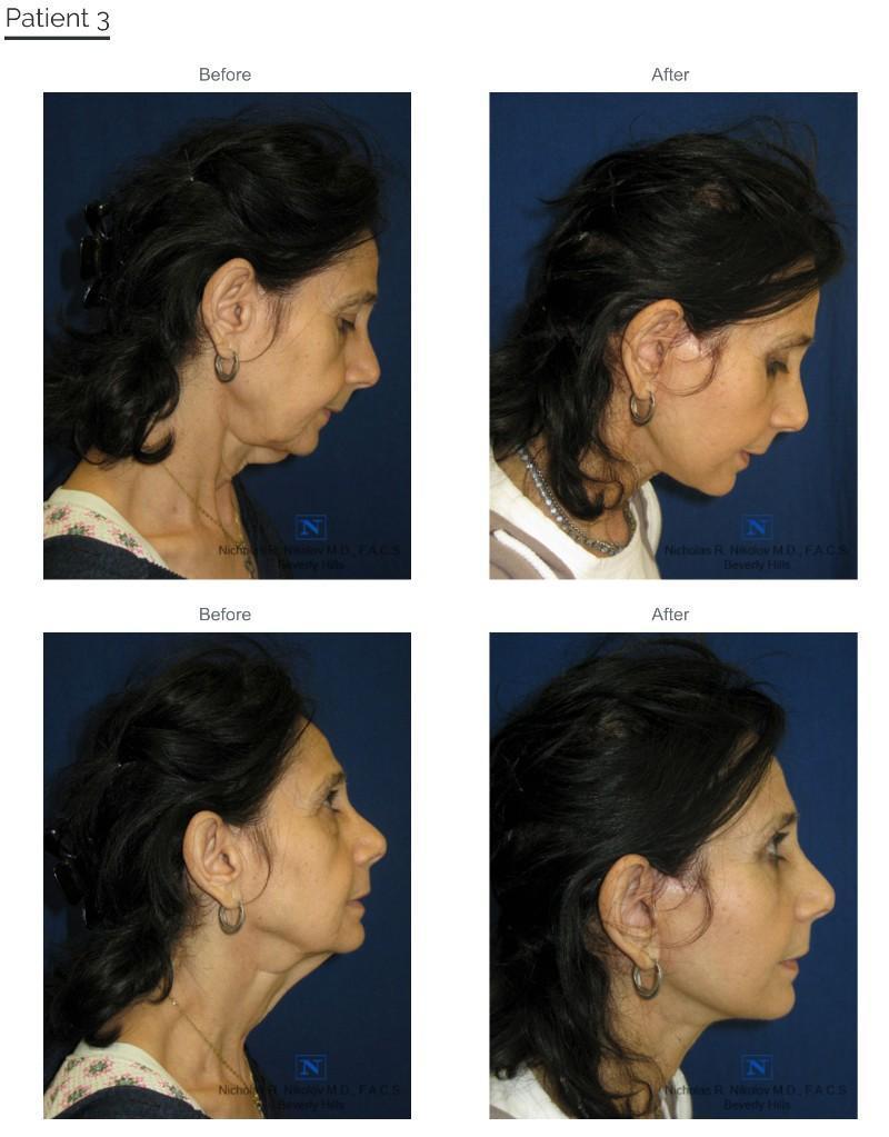 Neck Lift (Submental Lipectomy)/EmbraceRF/FaceTite - Beverly