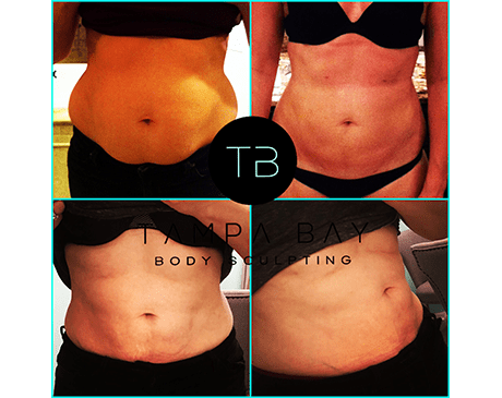 Six Pack Abs/Ab Etching - Tampa, FL: Tampa Bay Body Sculpting