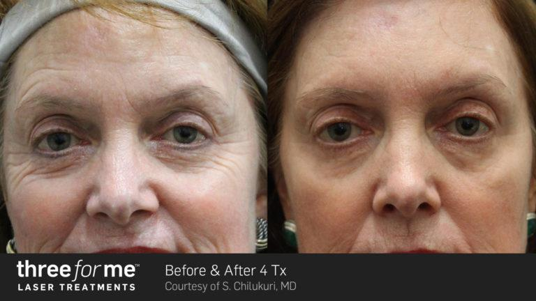 Threeforme Laser Skin Resurfacing Js Healthcare Internists