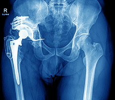 Revision Hip and Knee Replacement Surgery