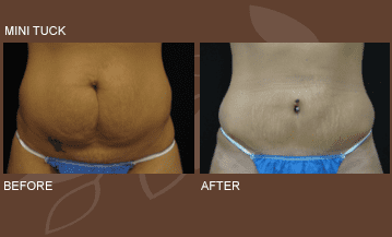 Mini Tummy Tuck - Decatur, TX: Lonestar Surgical Specialists PA