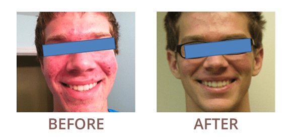 Before & After - Columbia, MD: Medical & Aesthetic Dermatology