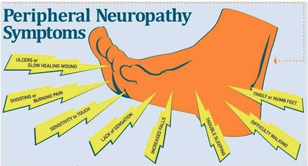 Image result for Peripheral Neuropathy