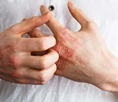 Psoriasis & Eczema