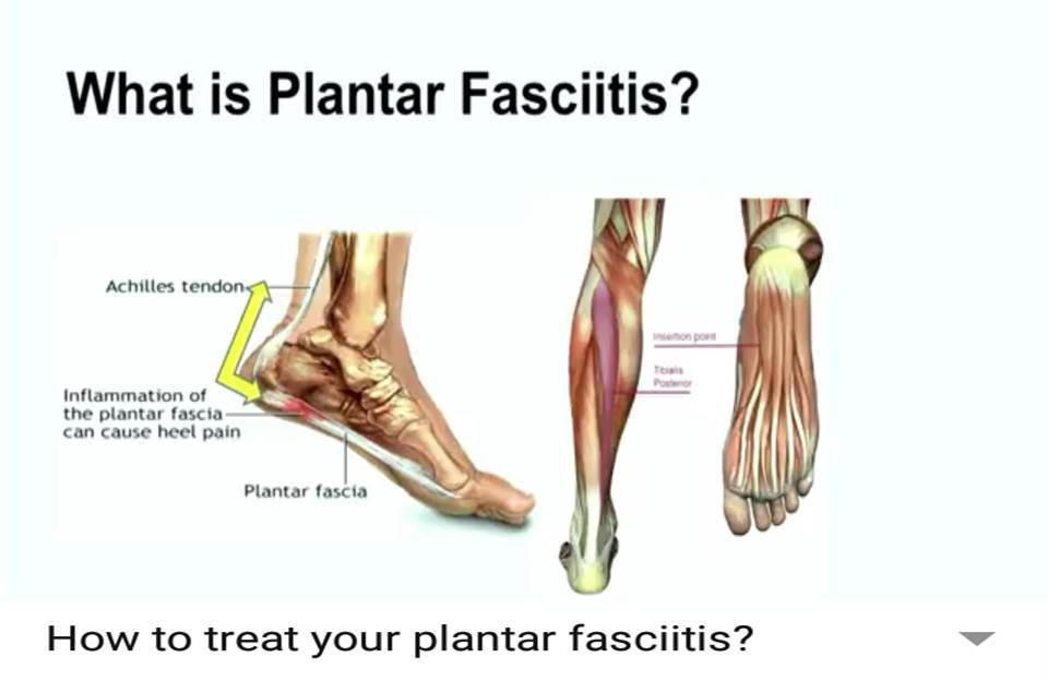 How to treat your plantar fasciitis?: Central Massachusetts Podiatry ...