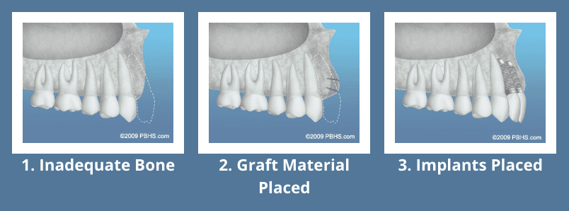 Graphic of bone bone grafting